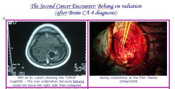 cancer2a