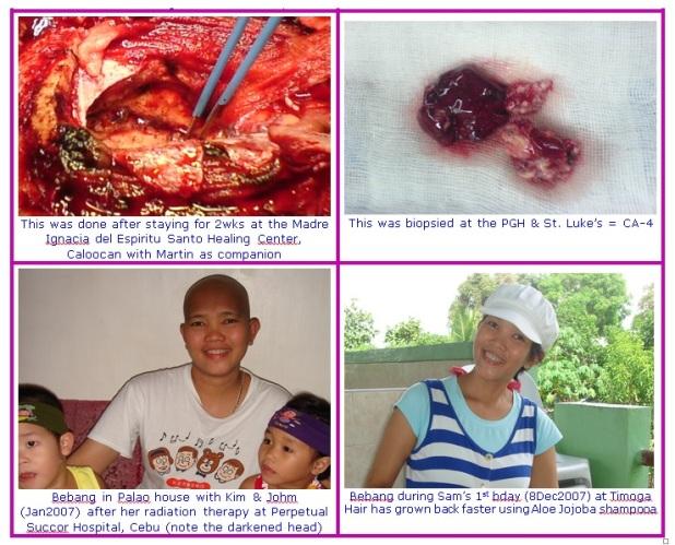cancer2b